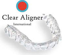 Clear-Aligner